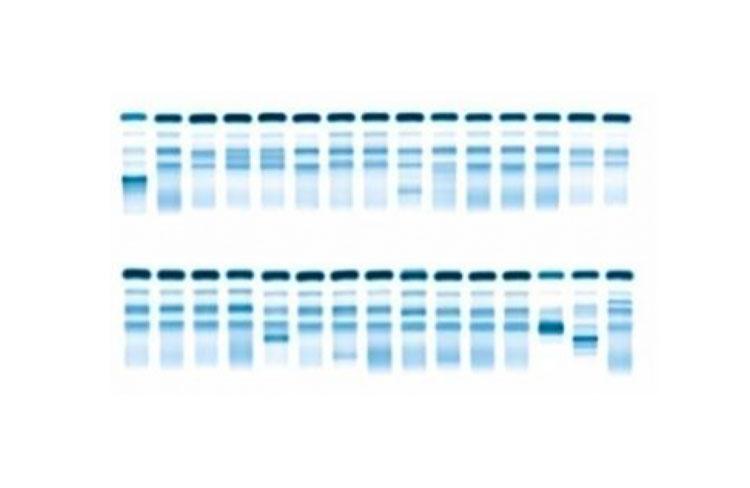 biochimie laboratoires de diagnostic d 39 oniris. Black Bedroom Furniture Sets. Home Design Ideas